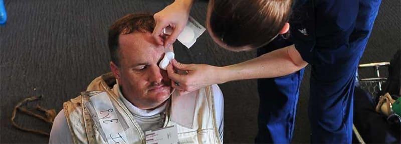 Травма в результате несоблюдения техники безопасности при сварке
