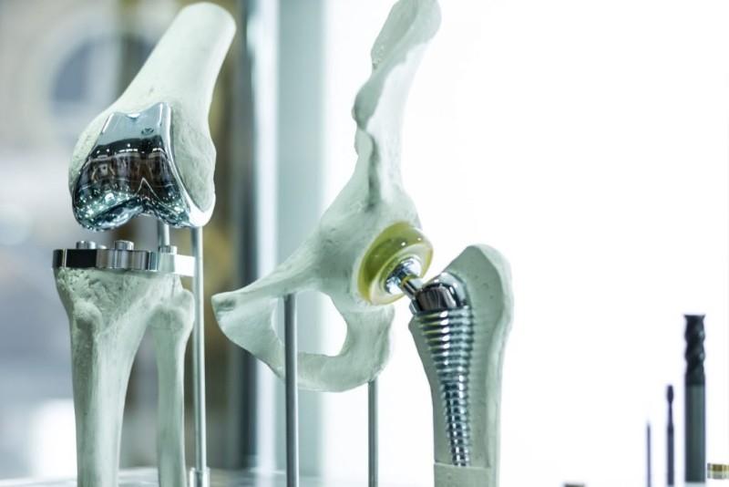 Применение титановых сплавов в протезах